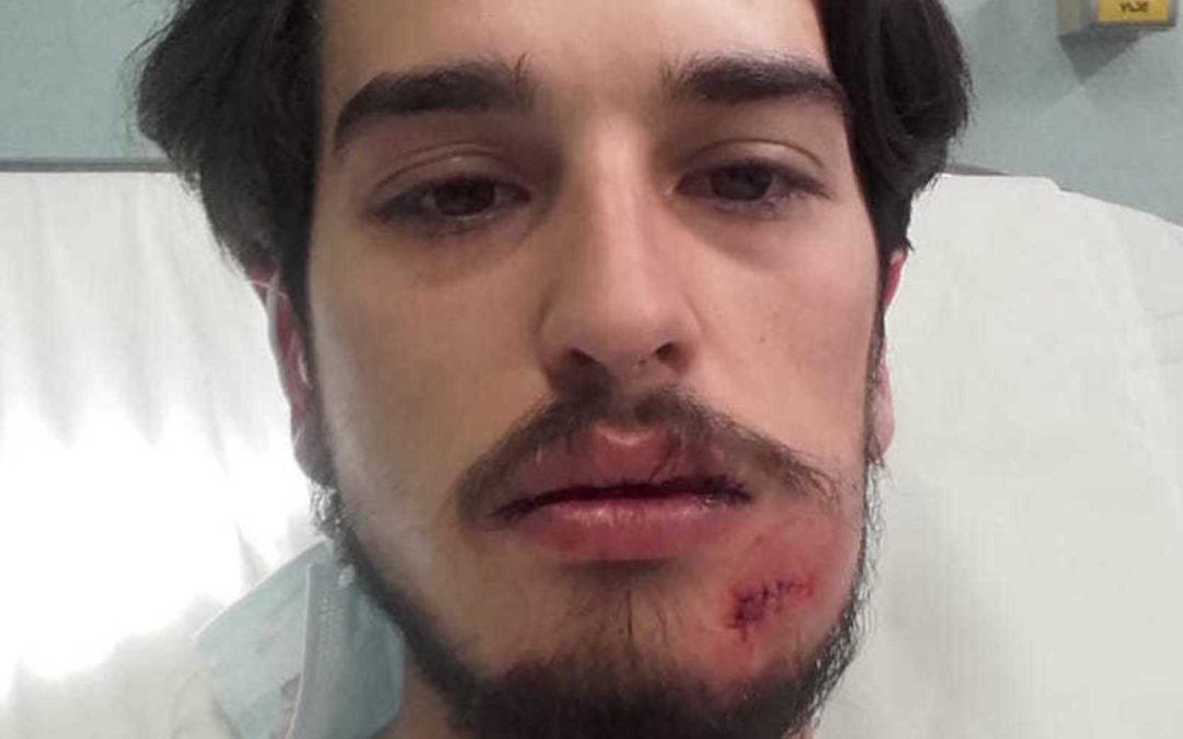 "Nahuel Gómez Rodríguez: ""Estas bolas fan dano e disparan contra civis inermes!"""